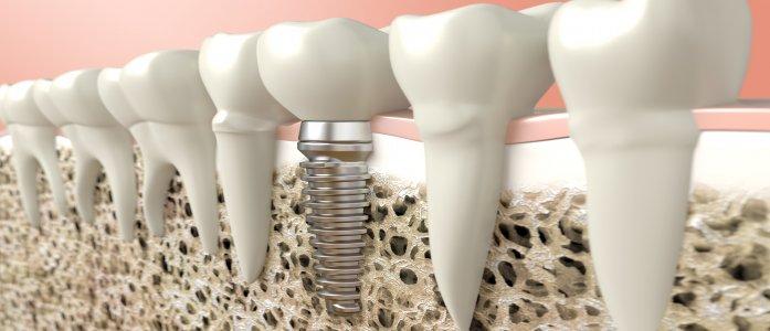 implant tedavi yöntemlerimiz
