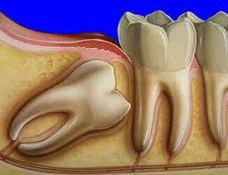 20'lik Dişlerin Çekilmesi