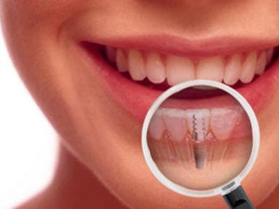 implant sonrası