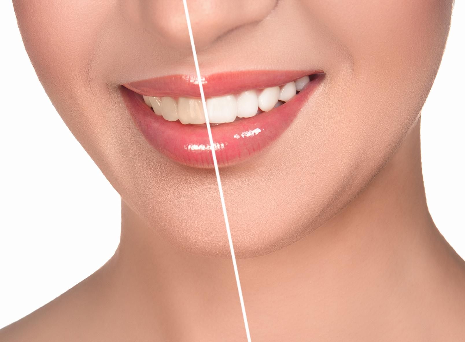 Dişlerin Sararması Nasıl Engellenir?