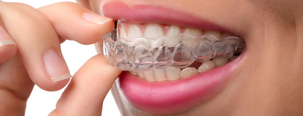 Bruksizm Diş Gıcırdatma Dikkate Alınmalı !