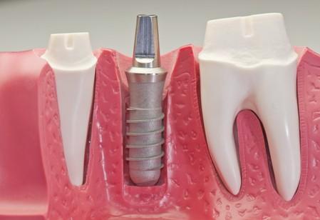 implant-tedavi