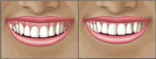 Diş Eti Estetiği Hangi Durumlarda Yapılmaktadır