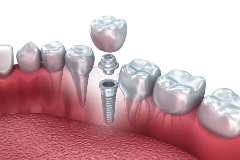 Dental Implant in Turkey