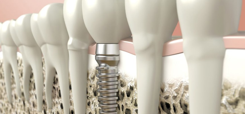 dental implant uygulamaları