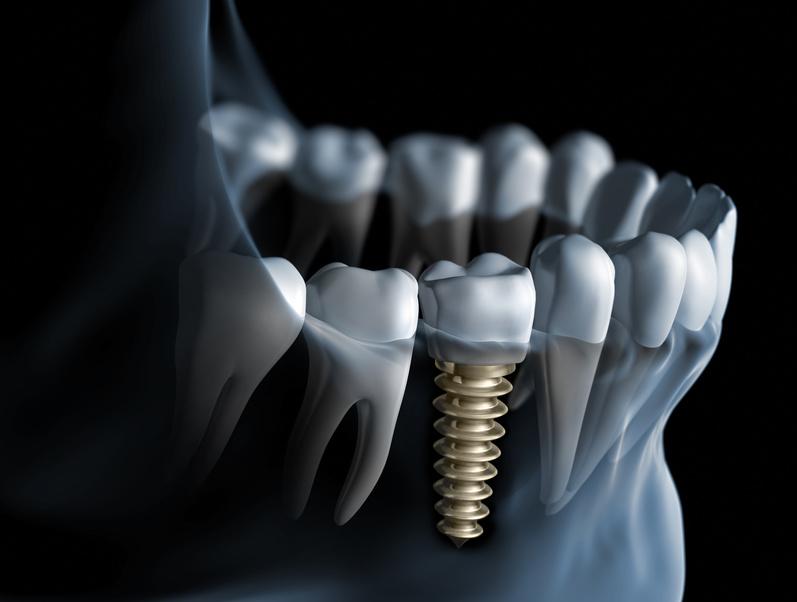 implant-tedavileri