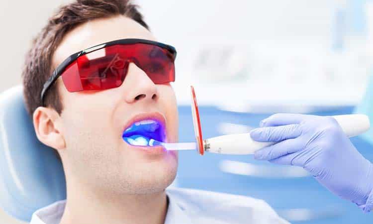 diş hekimliğinde lazer diş tedavileri