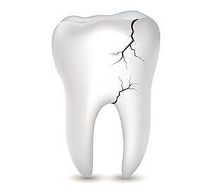 çatlak diş sendromu hakkında bilgiler